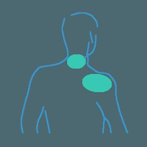 depilacja laserowa szyi i barków